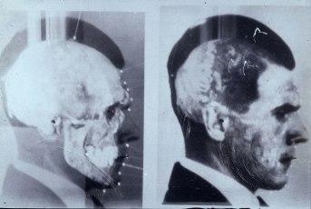Josef Mengele Teschio